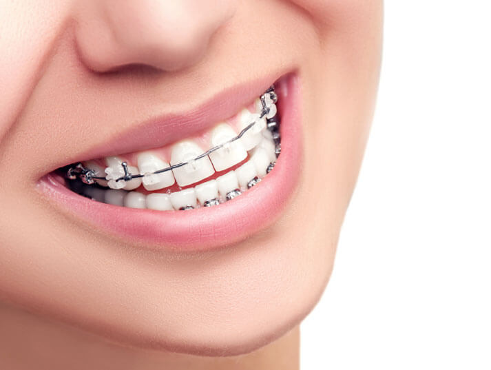 Six Month Smiles Service