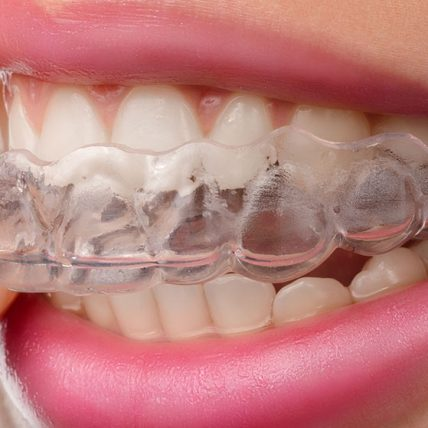 Invisalign: The Clear Solution for Misaligned Teeth