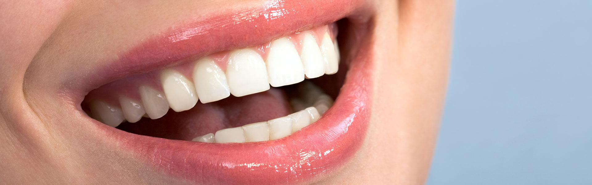 Teeth Whitening Treatment in Pearland