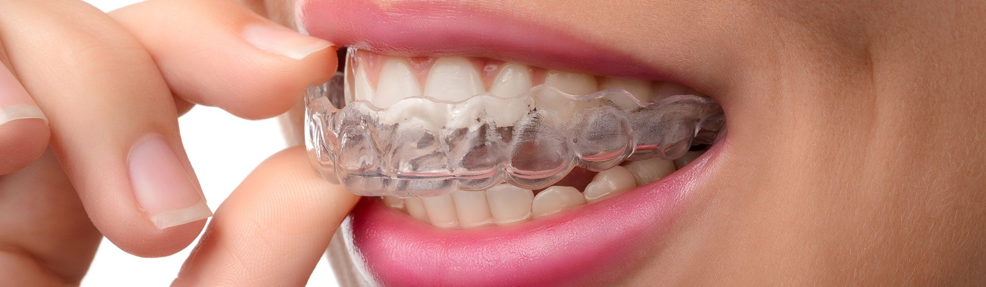 Pearland Invisalign Treatment
